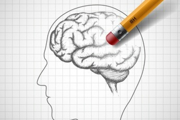 Positioneringsonderzoek Alzheimer